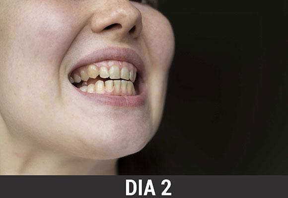 Exclusivo Famoso Modelo Fotografico Revela Como Clareou Seus Dentes